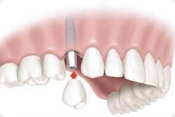 Sustitución de un único diente. Clinica dental Armonía