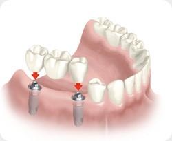 Sustitución de varias piezas dentales. Clinica dental Armonía
